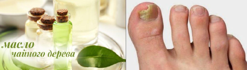 Лечение маслом чайного дерева или мелалеука спешит на помощь!